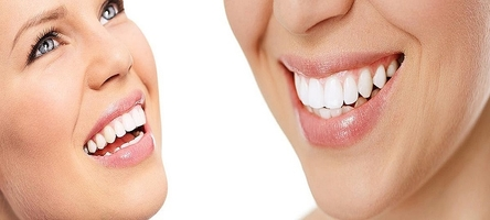 Take a look at Dental Implants 23
